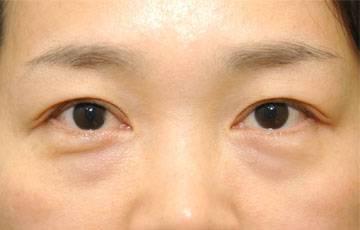 眼袋是什么原因形成?